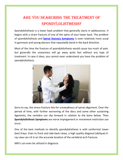 Are You Searching The Treatment of Spondylolisthesis